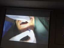Implant and GBR course in Hamedan_11