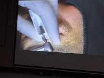 Implant and GBR course in Hamedan_7
