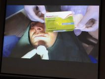 Implant and GBR course in Hamedan_8