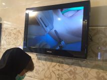 SIC system presentation with live surgery _13