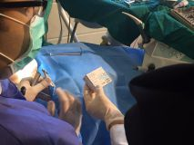 SIC system presentation with live surgery _17